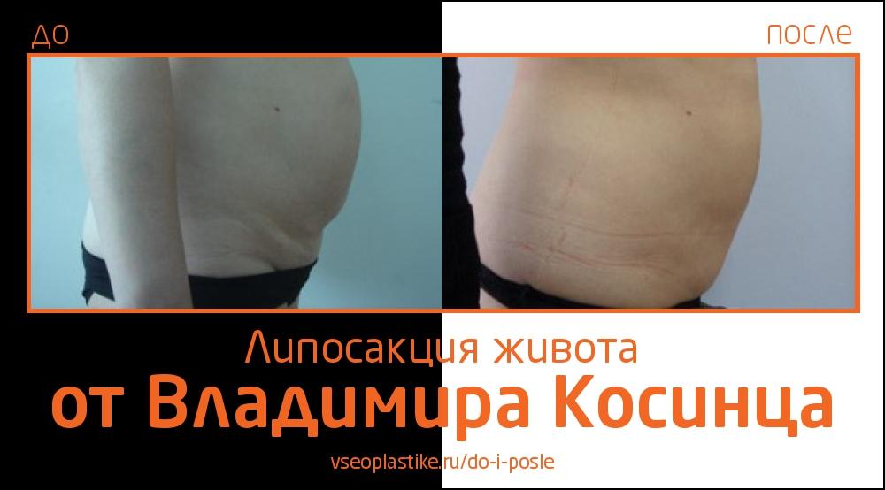 я до и после липосакции фото