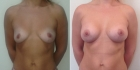 Светлана Пшонкина. Фото пациентки до и после увеличения груди
