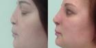 Светлана Пшонкина. Фото пациентки до и после реконструкции носа