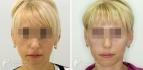 Пациентка до и после софтлифтинга