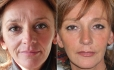 Facereshaping у доктора Мерлина
