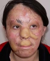 Зуля в 14 лет осталась без лица