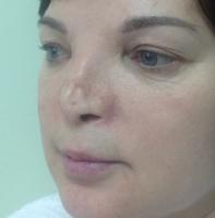 Результат первой неудачной реконструкции носа