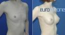 Сергей Блохин. Увеличение груди имплантами Eurosilicone