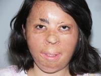 Лицо Зули после ряда пластических операций