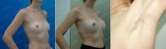 Пациентка Марии Егоровой до и после эндоскопического увеличения груди
