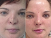 До и после реконструкции носа у Светланы Пшонкиной