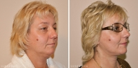 Пациентка доктора Шихирмана до и после тотального фейслифтинга