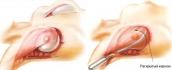 Эндоскопическая методика является сегодня самым безопасным способом увеличить грудь