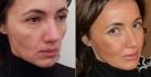 До и после процедуры Facereshaping у Марко Мерлина