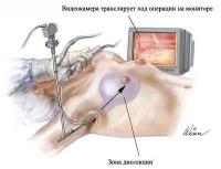 Метод эндоскопического увеличения груди