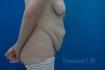 Абдоминопластика (пластика живота) во Фрау Клиник