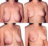 Мария Егорова. Уменьшение груди