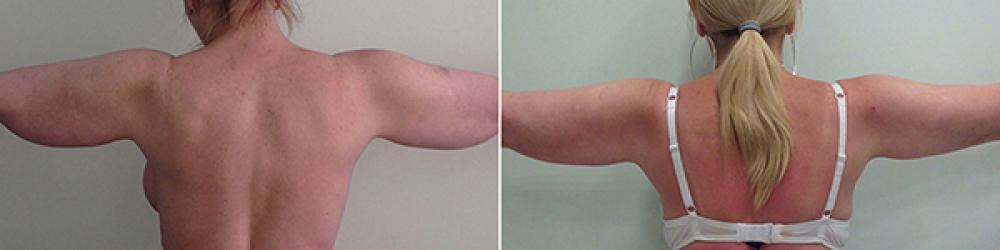 До и после радиочастотной липосакции рук у пластического хирурга Светланы Пшонкиной