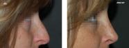 В.С. Григорянц. Пациентка до и после ринопластики