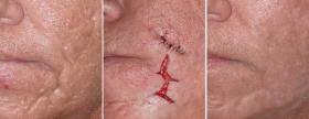 До и после коррекции рубцов у Азизы Усмановой