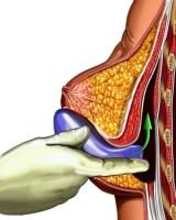 Установка импланта под большую грудную мышцу