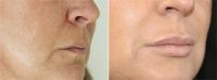 Коррекция формы губ. Клиника DoctorPlastic