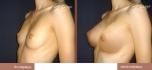 До и после увеличения груди у Владимира Корчака
