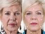 До и после микротоковой процедуры