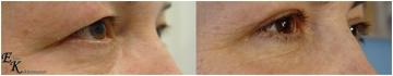 Блефаропластика верхних век, с частичной резекцией порции круговой мышцы глаза. Клиника Doctor Plastic, хирург Кахраманов.