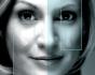 Эндоскопическая подтяжка средней зоны лица с помощью эндотинов