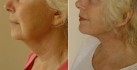 Фото до операции и через 11 дней после нее