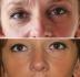 До и после процедуры Face Reshaping у Марко Мерлина