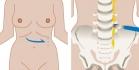 Эндоскопическая поясничная симпатэктомия