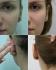 Лазерное удаление келлоидного рубца мочки уха