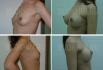 Сергей Блохин. Увеличение груди