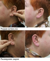 Пластика мочки уха. Александр Грудько