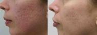 Фракционное омоложение кожи, удаление рубцов постакне. Хирург А.В. Грудько