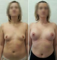 Александр Абакумов. Увеличение груди