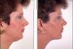 Миниивазивная коррекция лица ниятми Aptos.Клиника ОРПХ.