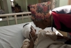 Пластические хирурги прооперировали девочку с редким заболеванием кожи