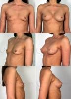 Георгий Чемянов. Увеличение груди: до и после