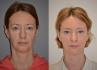 Результаты эндоскопии средней зоны лица с перераспределением жировых пакетов в носослезной борозде через 4 месяца после операции
