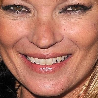 Кейт Мосс изуродовали пластические хирурги