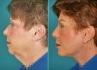 Подтяжка нижней трети лица при помощи эндотинов