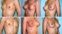 Увеличение груди при помощи экспандера