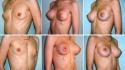Увеличение груди с помощью экспандеров