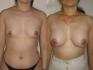 Ирина Мариничева. Увеличение груди