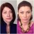 Роза Сябитова до и после контурной пластики лица