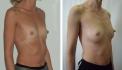 Пациентка доктора Сергеева до и после липофилинга груди