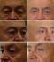 До и после блефаропластики. Арслан Агаевич Пенаев