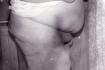 После операции по удалению жирового «фартука»