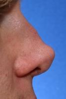 Осложнение кончика носа