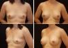 Камкамидзе М.В. Увеличение груди методом баллонной дерматензии