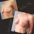 Увеличение+подтяжка груди Анатомические импланты, объем 380 мл. Результат через 1 мес. после операции.
